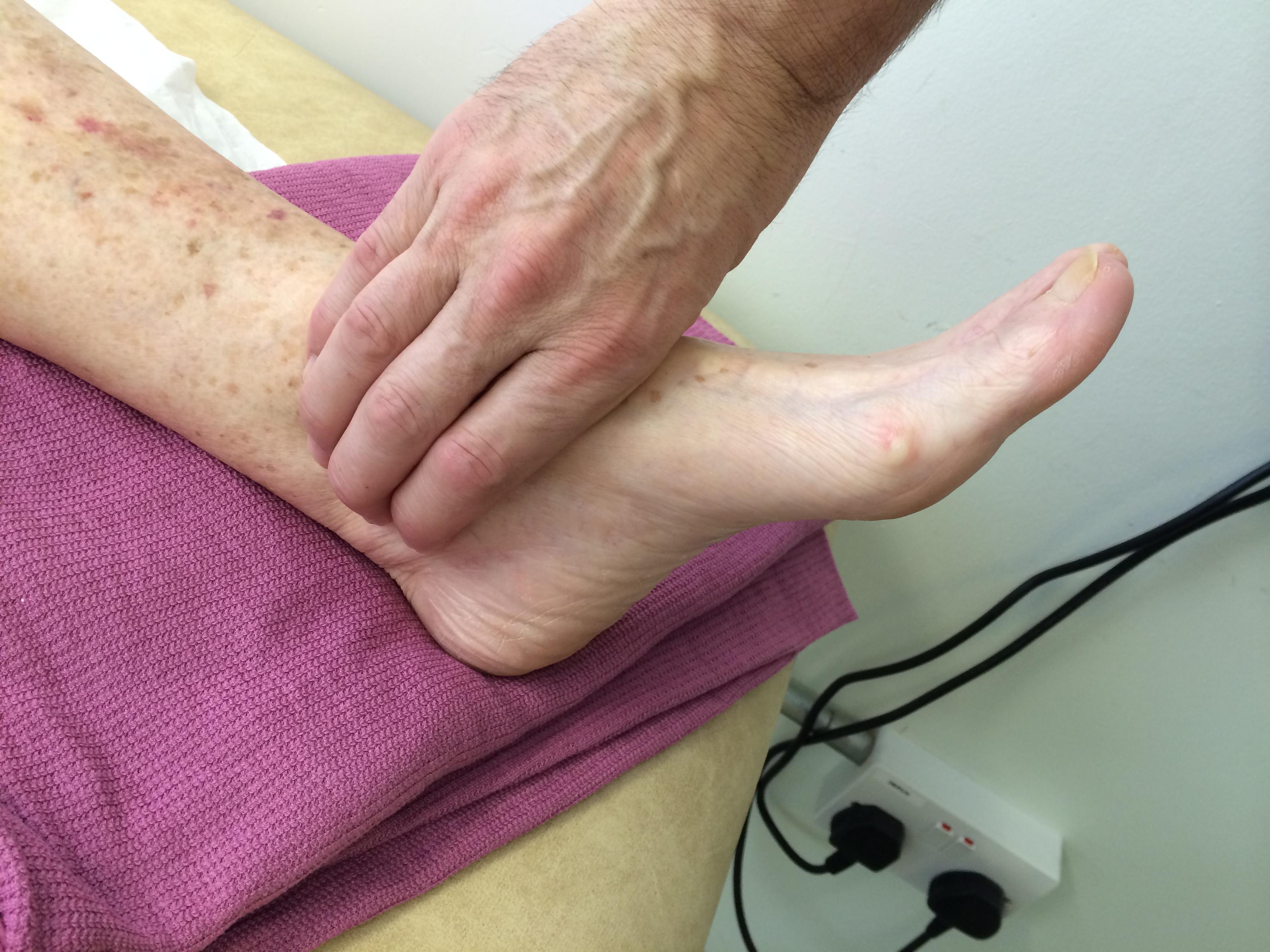Claudication (Cramp when walking) - Vascular Society