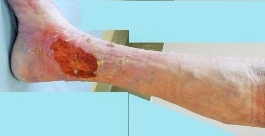 leg ulcers vascular society