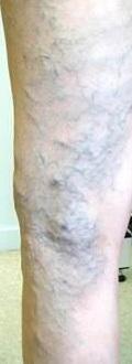 Varicose Veins - Vascular Society