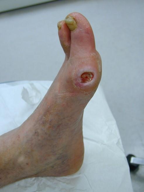 Image result for arterial ulcer